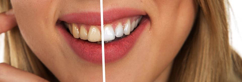 Wieder richtig lachen können- Zahnzusatzversicherung